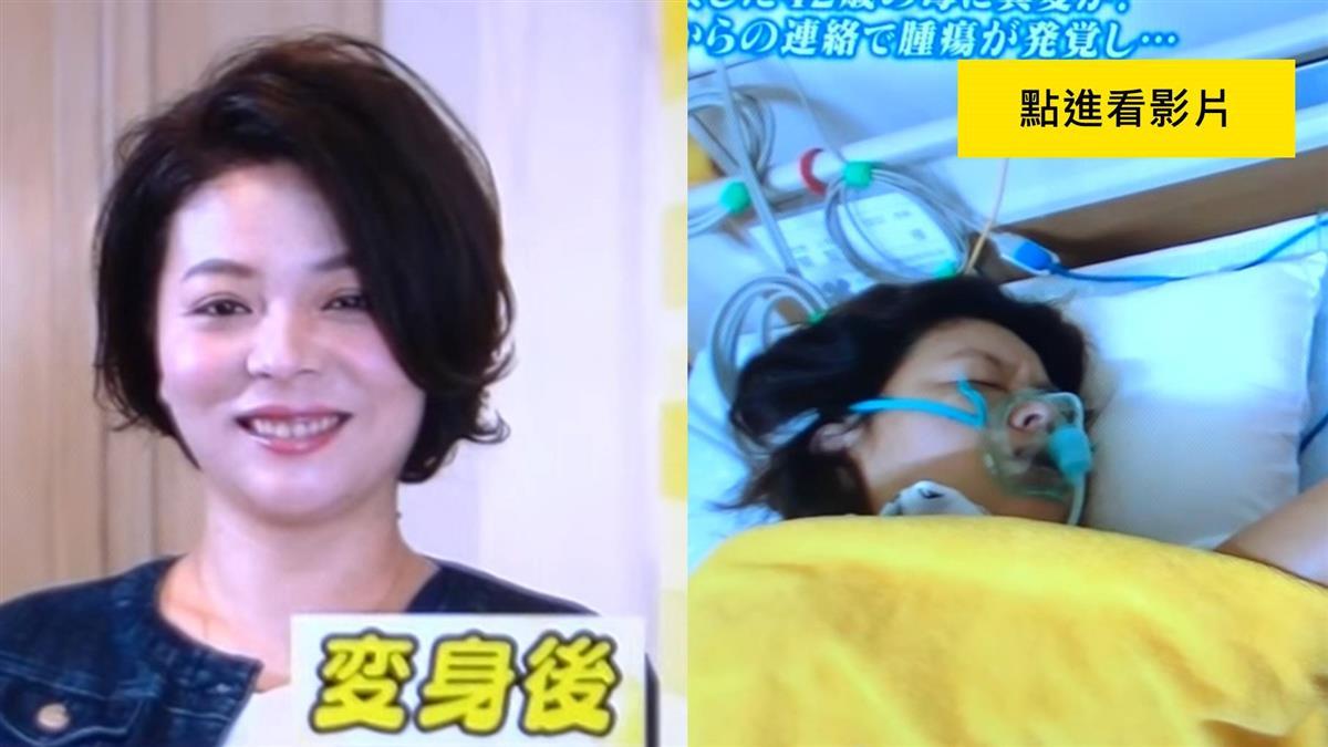 42歲媽上節目 他看出「脖子怪怪」…竟是惡性腫瘤!