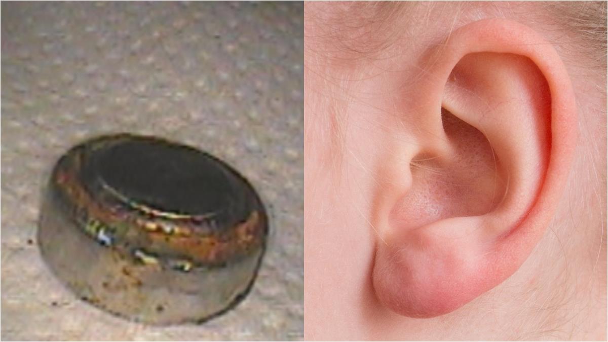 8歲童怕被罵!耳卡鈕扣電池一周…耳膜燒破損聽力