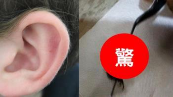 耳朵好癢…中年婦耳道養10公分大蜈蚣!夾出狂蠕動