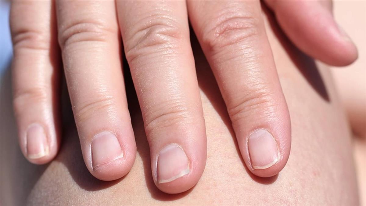 皮膚癌威脅男性 研究:8國死亡率激增至少50%