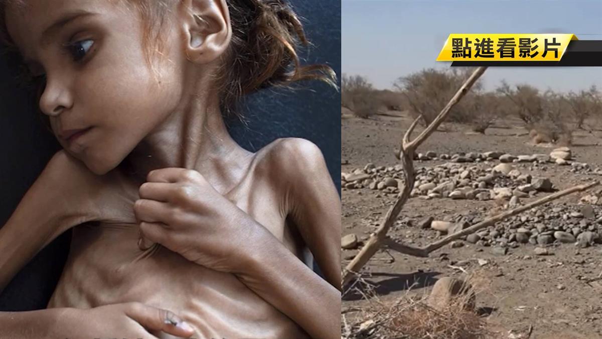 骨頭根根分明…7歲葉門女童病餓身亡!照片震驚全球