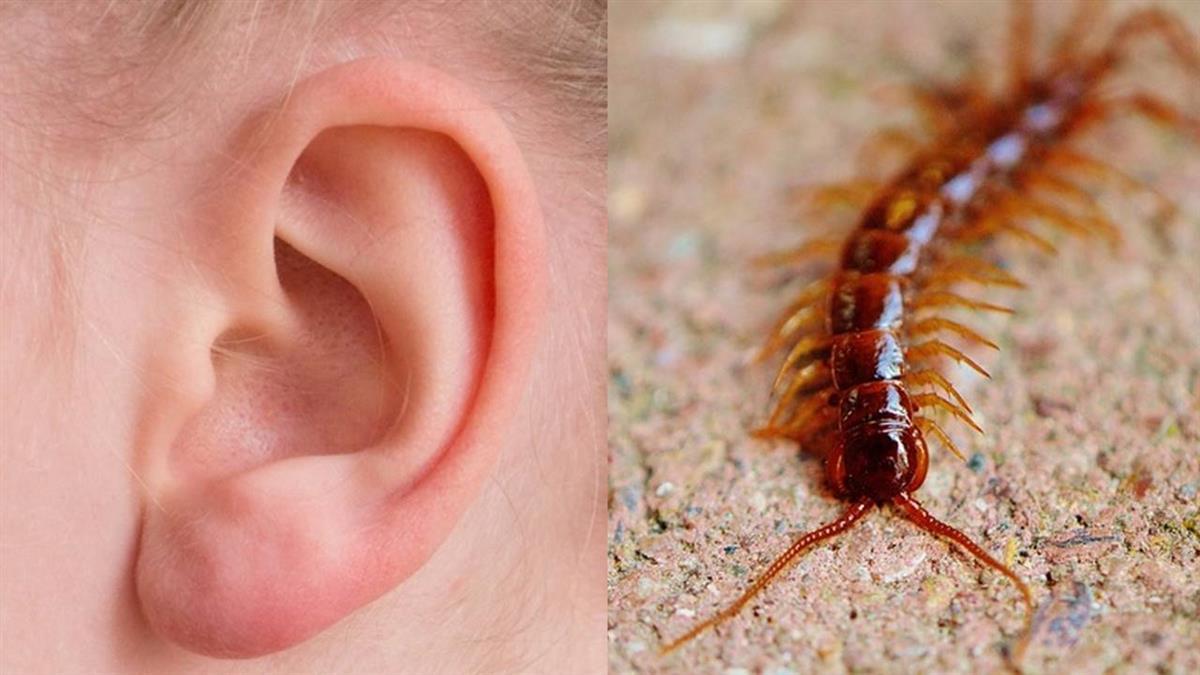 11歲男童半夜耳朵痛…傳奇怪聲音!驚見5公分蜈蚣