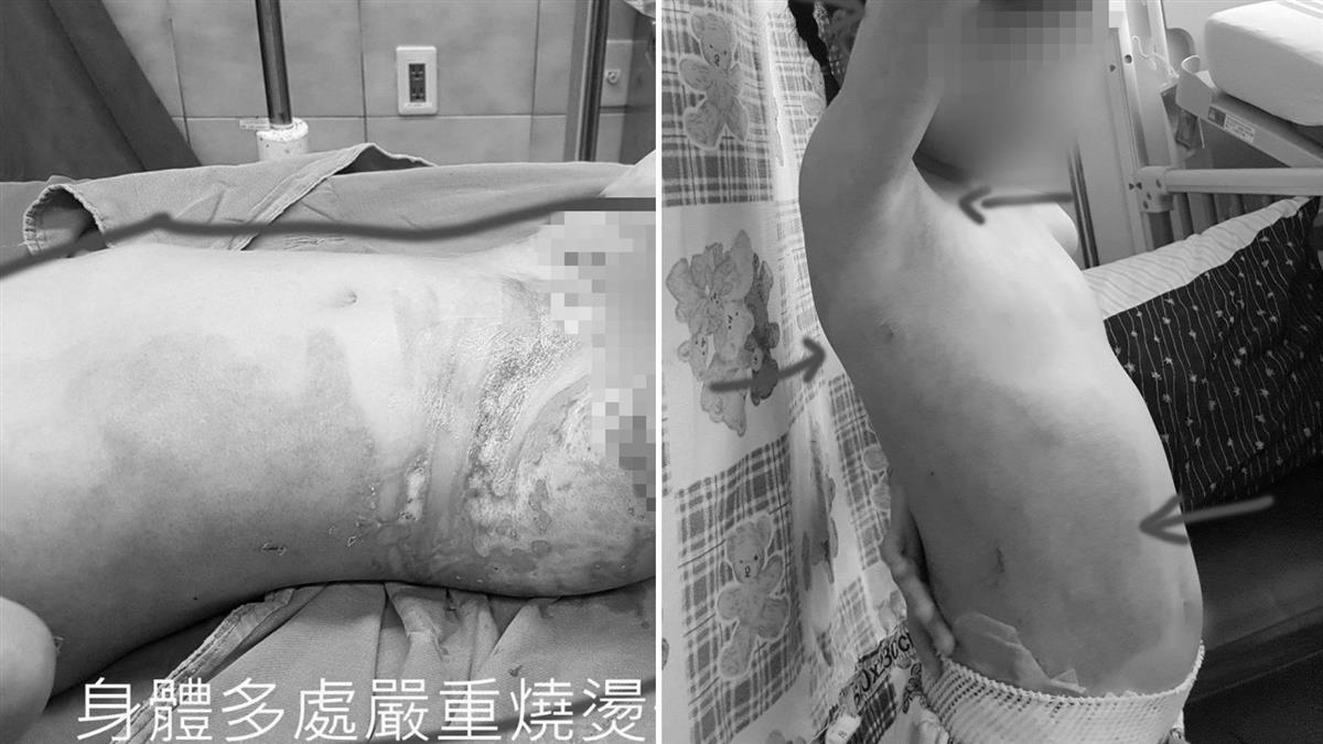 女童幼兒園燙傷24%「皮膚黏衣褲」老師竟叫她自己沖水