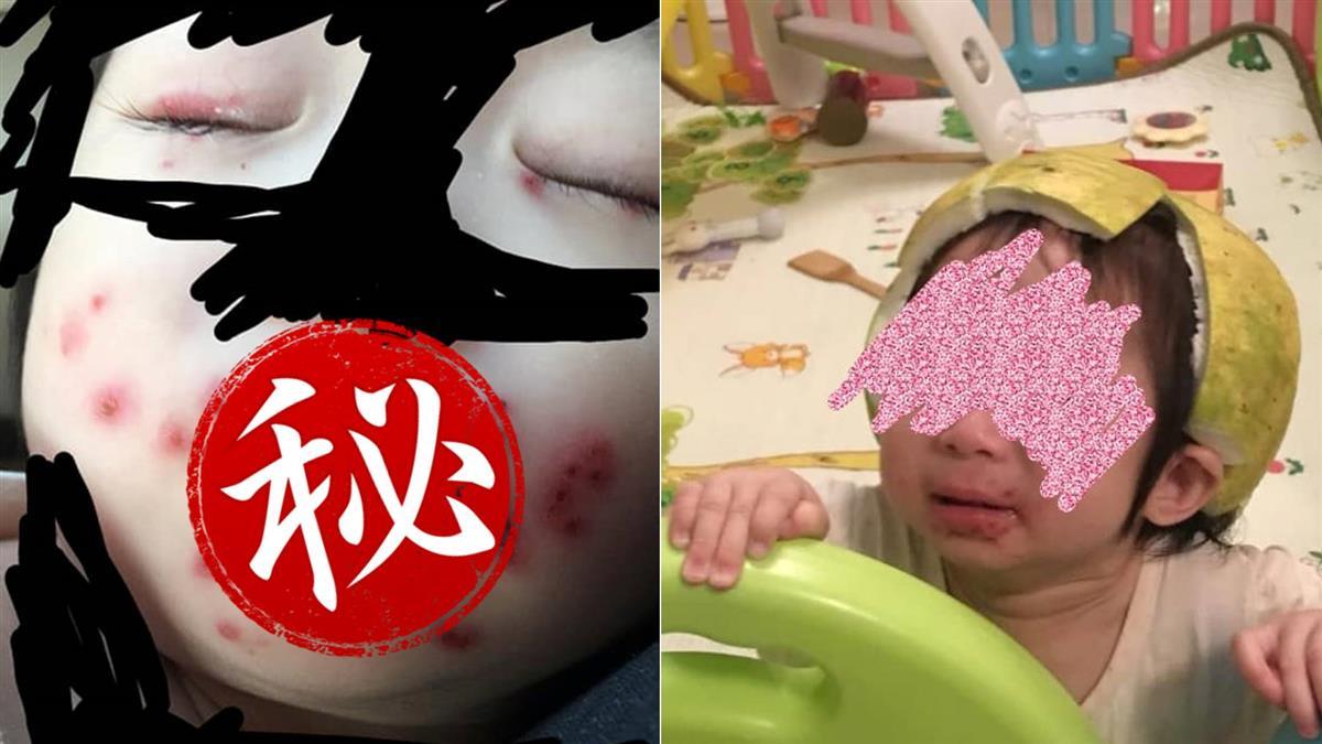 食物咬過再餵!寶寶半張臉爛掉