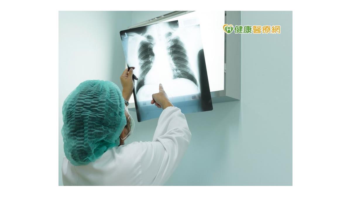 肺癌骨轉移別輕忽 骨折、癱瘓得不償失