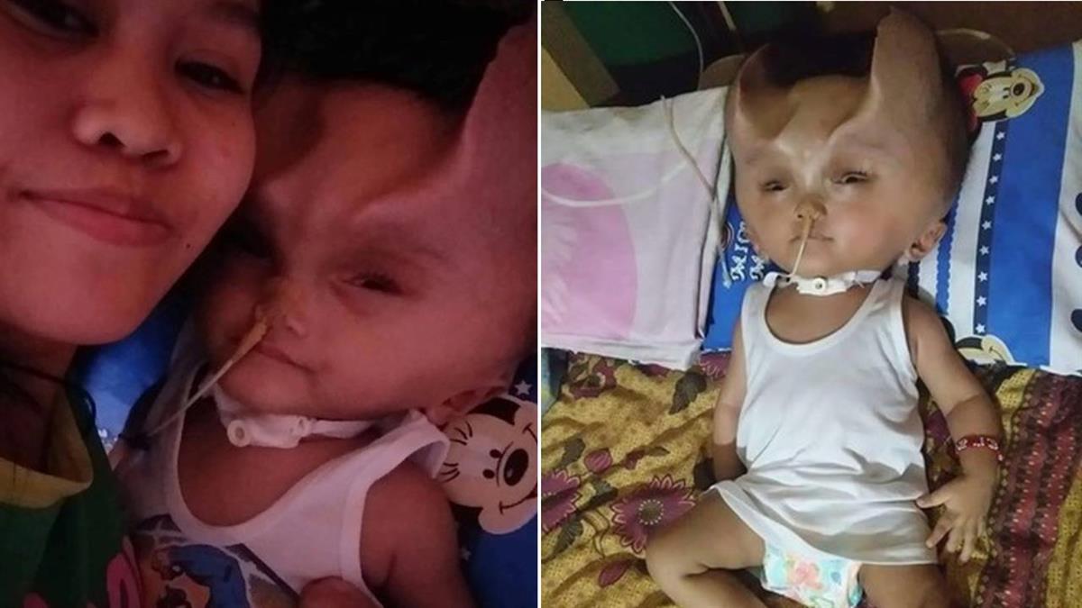 男嬰罹罕病動手術長「惡魔之角」 母痛心:他是天使