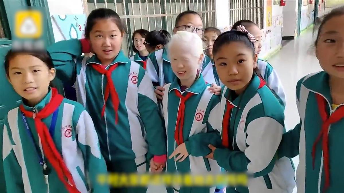 不向命運低頭!11歲白化症女孩 同學暖心幫圓導演夢