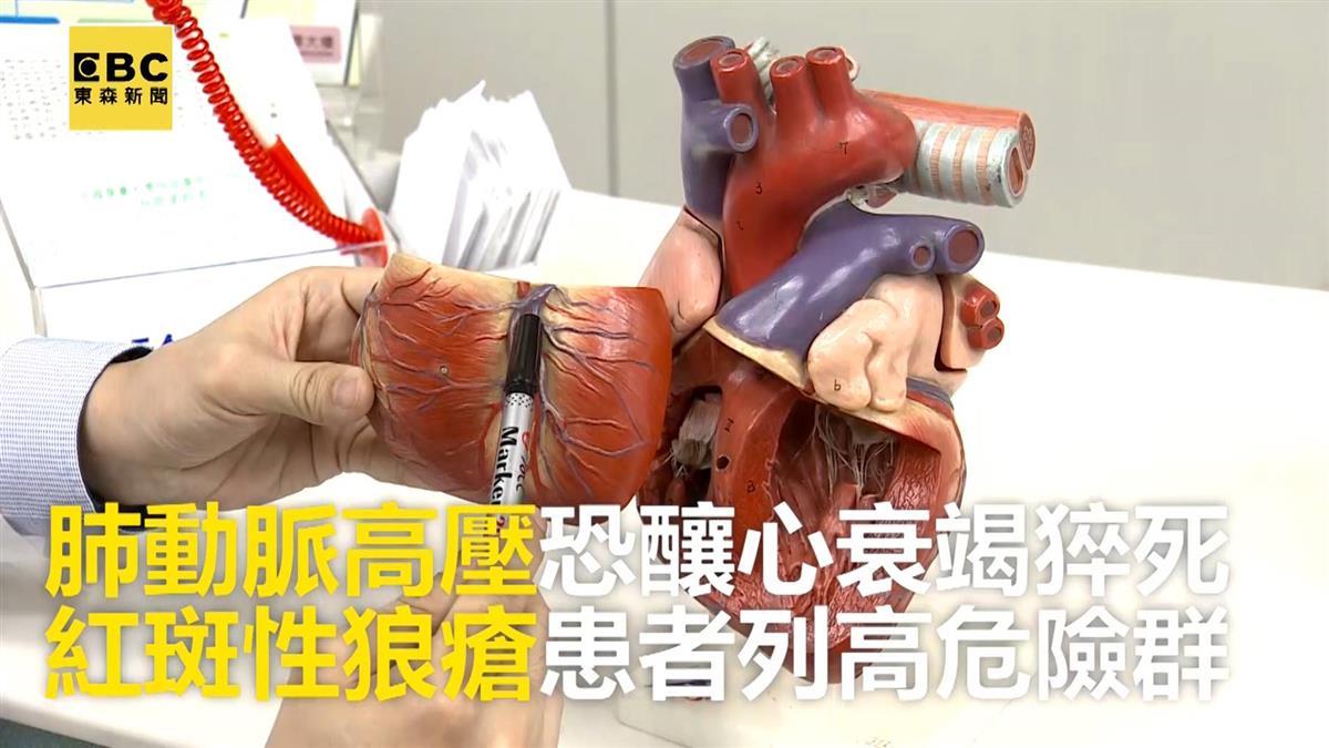 肺動脈高壓恐釀心衰竭猝死!美女病紅斑狼瘡藏致命風險