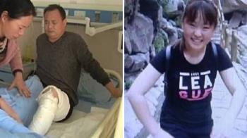 17歲少女全身8成燒傷 父「割皮救女」:全都給她