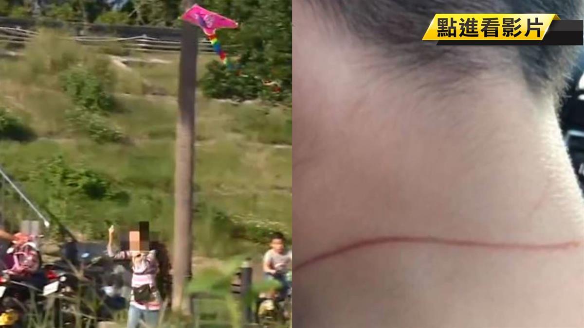 驚!風箏線絆倒孩童 脖子遭割頸受傷