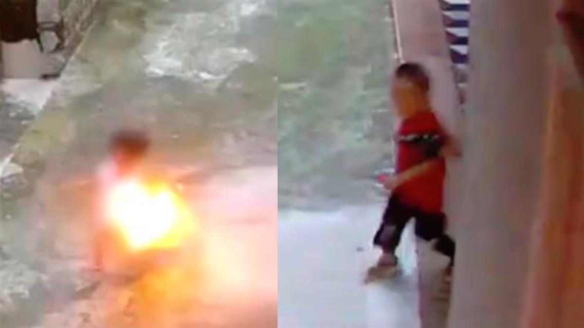 男童頑皮燒裙子!3歲女童「瞬間變火球」 狂燒30分鐘