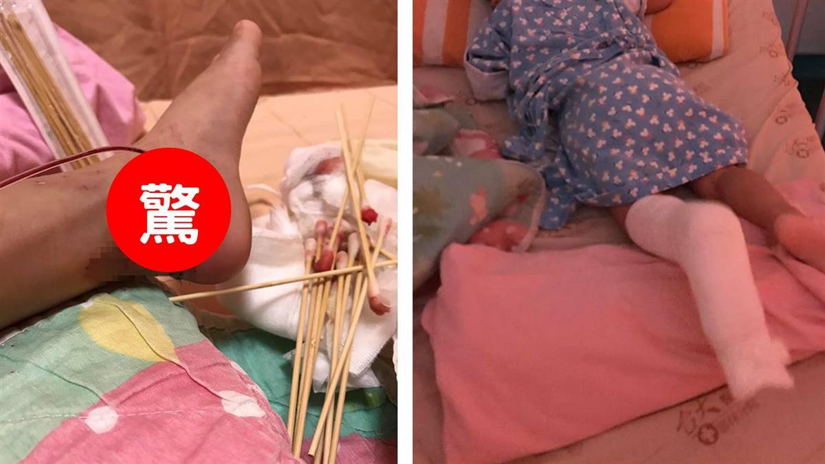 2歲女鵝被絞破皮炸肉!媽媽心痛PO文:別坐這種腳踏車