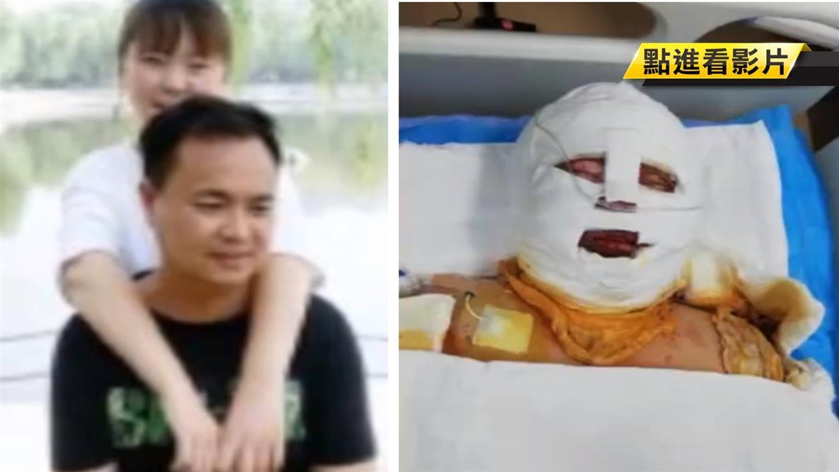 17歲少女全身8成燒傷!父割整條腿皮膚救女 騙:外地工作