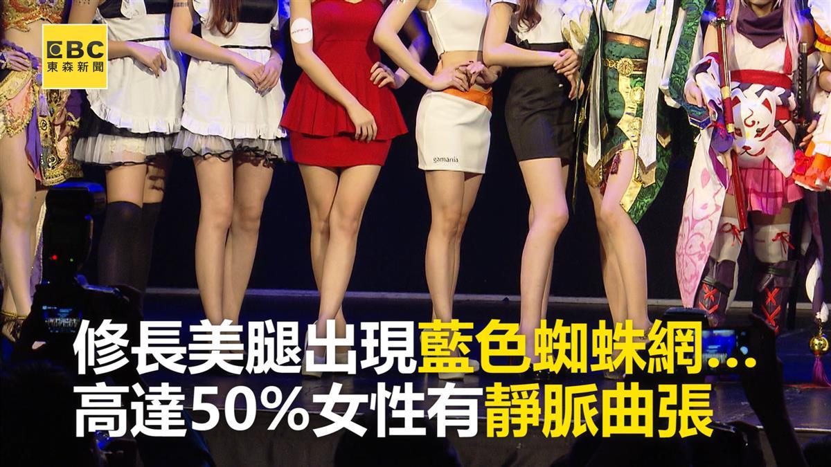 美腿變「藍蚯蚓」?50%女性有靜脈曲張 久站族成高風險群