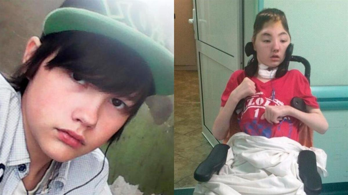 驚見媽被性侵!16歲兒PK歹徒…頭骨反遭打碎癱瘓亡