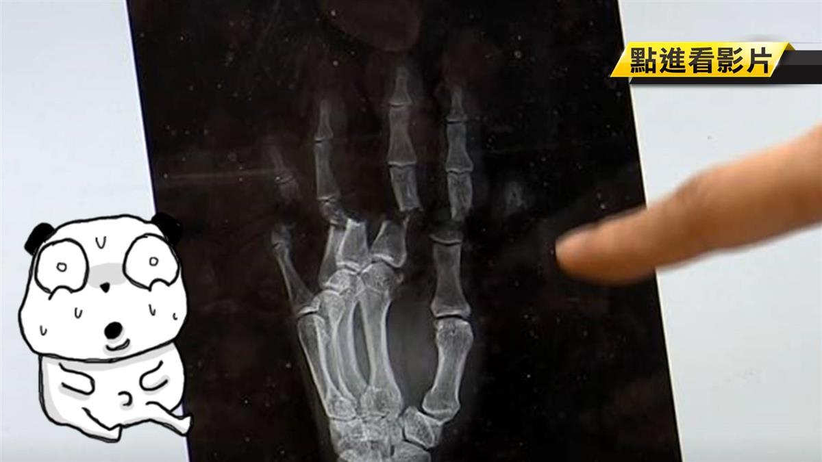DIY掀風潮!電鋸斷指、斷掌連4起 美女醫馬拉松手術救回