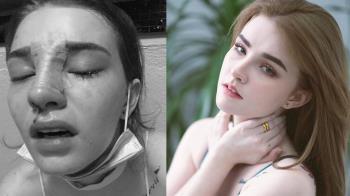 19歲辣模公開「整形術後照」!胸部滲血…痛到吃不下