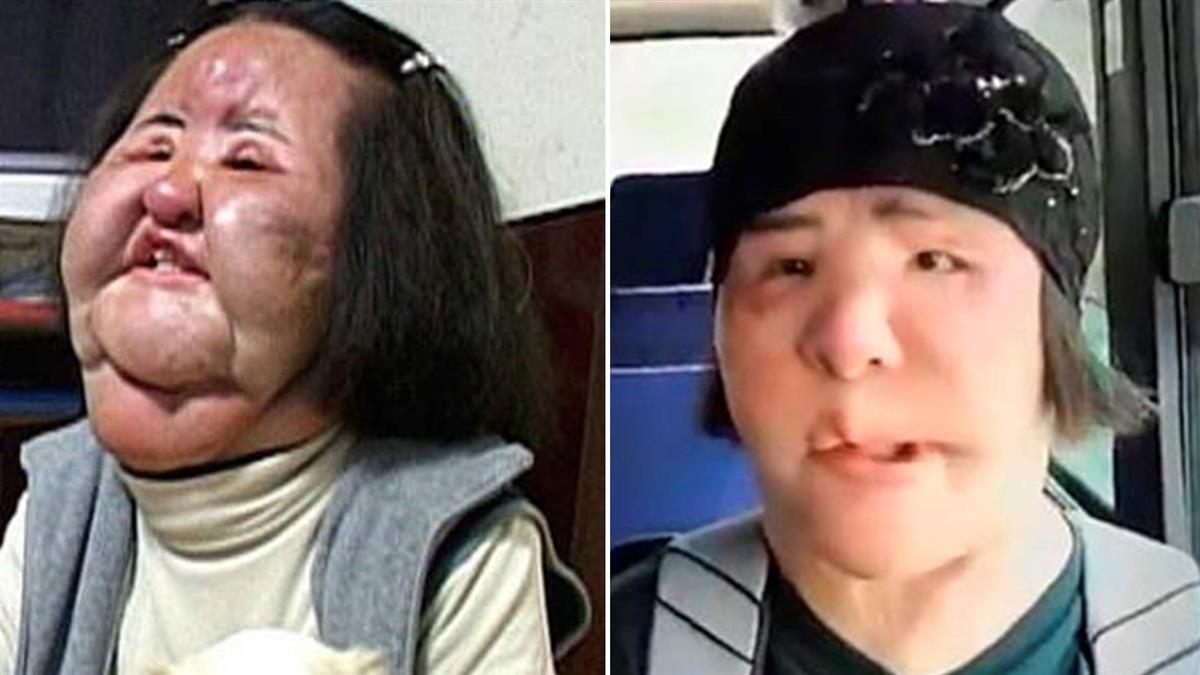 沙拉油注射臉腫3倍!電風扇阿姨驚傳過世…9年眼睛閉不上