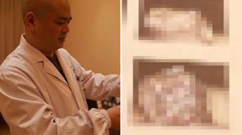 雞雞癢沒就醫 男慘成「陰莖癌」整根爛掉!只能切掉保命