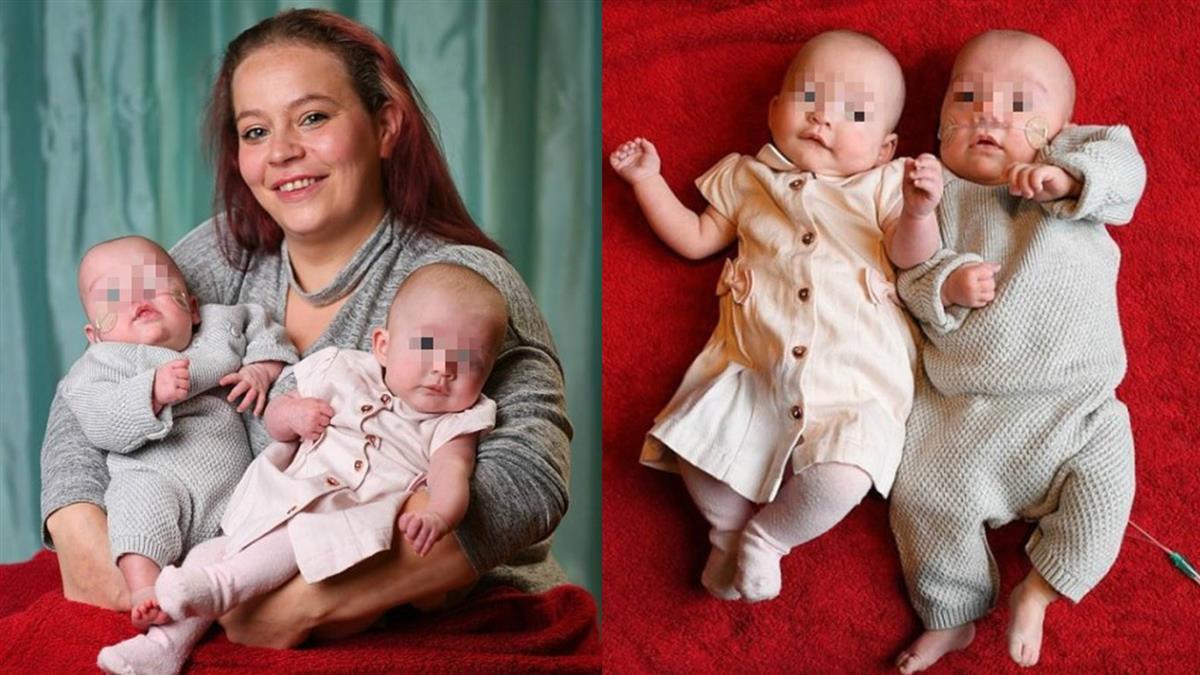 超罕見!32歲媽產龍鳳胎 兒出生…女嬰還「留在體內」