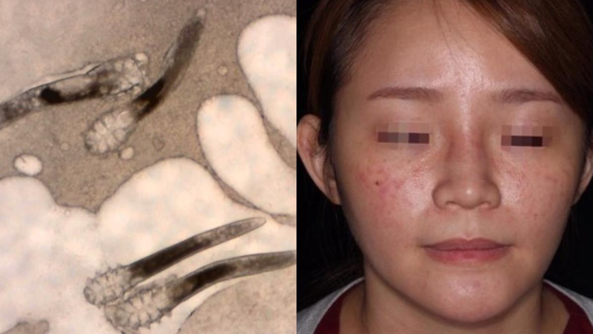 小模臉爬滿「8腳噁蟲」量多達10倍! 醫:每個人臉都有