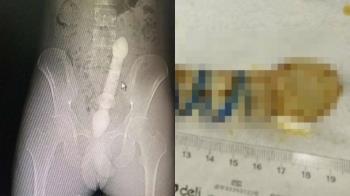 「救救我」小鮮肉冏喊:肛門痛 醫徒手掏25公分玻璃棒
