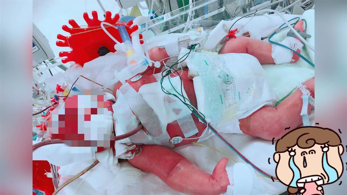 兒出生就「噴泉吐奶」…15天當天使 媽淚崩:只抱過一次