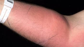 男治背痛注射「18管精液」手腫一包 醫曝驚人真相
