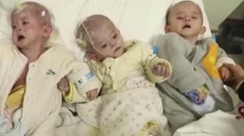 貧婦誕下「無肛3胞胎」!絕望淚崩:救不了就器捐