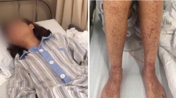 腿長紫斑、牙掉光!30歲女怪病纏10年…淚崩求醫獲新生