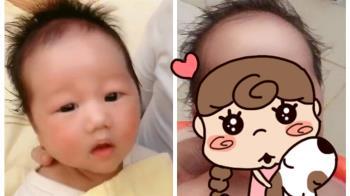 阿嬤養的!寶寶5天極速生長 小臉腫一圈…變完美圓形
