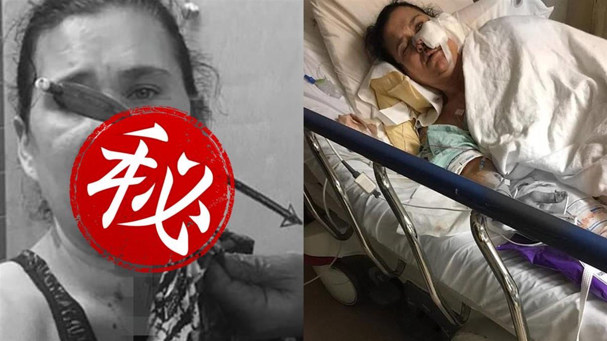 勇母護子慘遭十字弓射穿臉!驚悚插箭就醫…幾近毀容