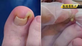 凍甲逆鑽趾縫…醫一擠膿包 濃稠液體流出