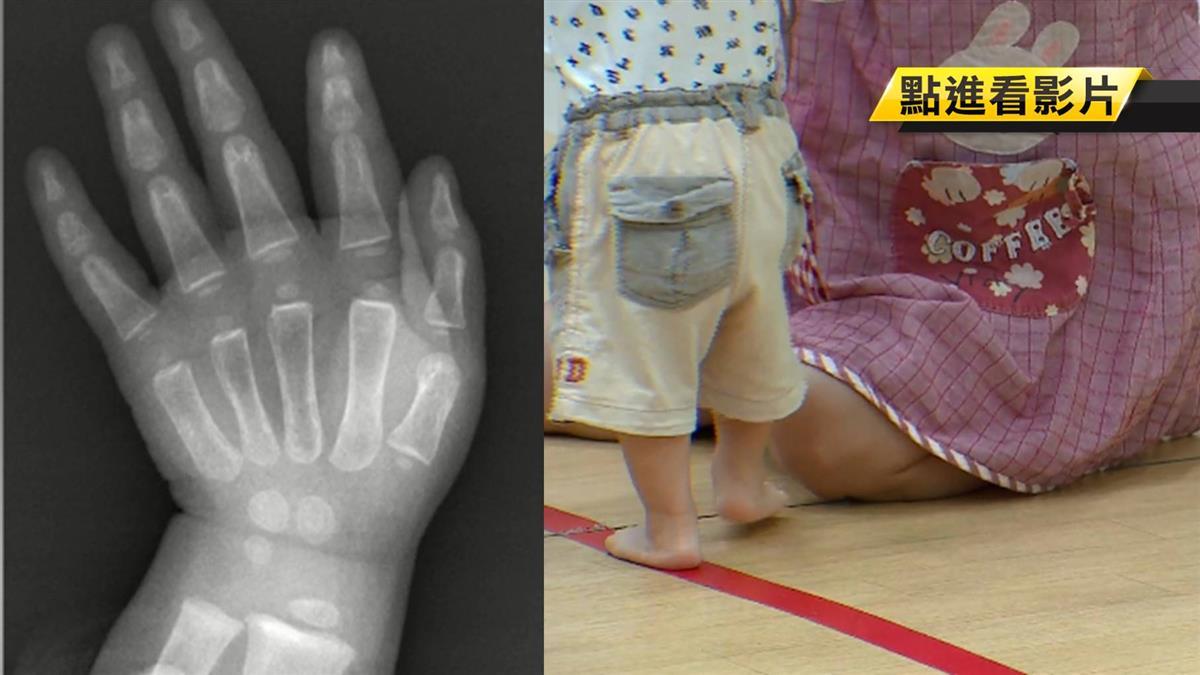 小孩照書養?1歲半童不會走路 竟患了這病