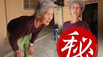84歲駝背嬤後仰一摔痊癒 醫傻眼:無法解釋