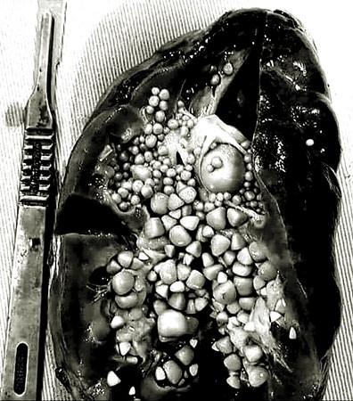 腎結石。(圖/翻攝Medical-Online臉書粉專)