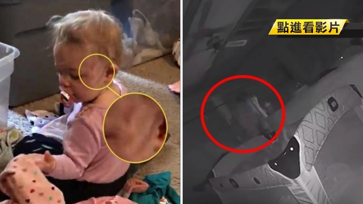 臉驚現3瘀痕!女兒曝…透明男人在角落