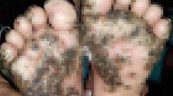 10歲女逛豬圈噁蟲寄生 腳底黑膿包惡化