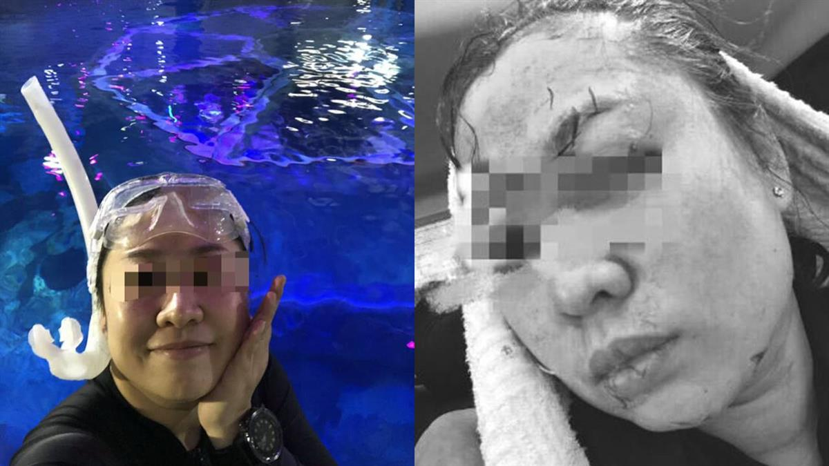 潛水遭虎鯊狠咬頭!她縫70針…毀容撿一命