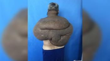 如鐘樓怪人!男背28kg腫瘤30年 手術動員100醫
