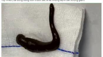 越男咳血一個月 氣管夾出15公分活水蛭