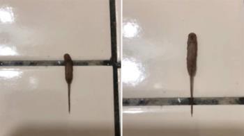 10cm詭異黑香腸狂蠕動!網驚:30年沒看過了