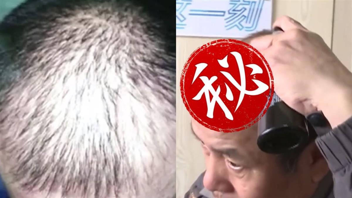 網購古方生髮水!男砸3萬 效果超驚人
