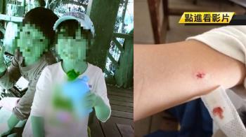 女童遭男同學狠揍7拳 母心碎控校方通報晚