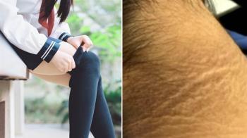胖可愛!15歲女飆80kg…脖長黑象皮 醫揭恐怖下場