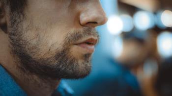 北京爺們愛植髮!36歲男重砸286萬變身花美男