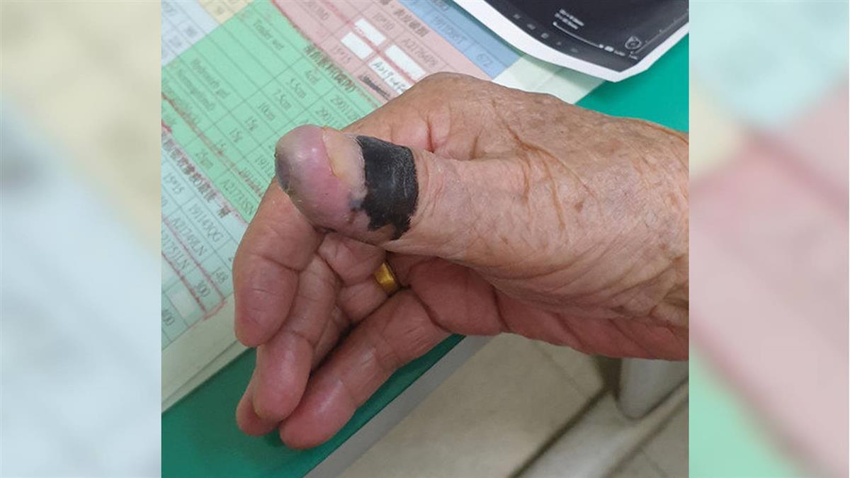她腋下摸到7.8cm腫塊 竟是拇指30年黑痣癌變