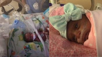 出生僅1顆蘋果重!全美最輕早產兒順利出院