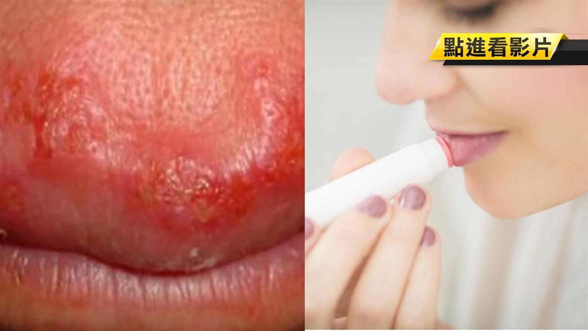 嫩唇狂冒水泡!女大生試用護唇膏 疑感染疱疹