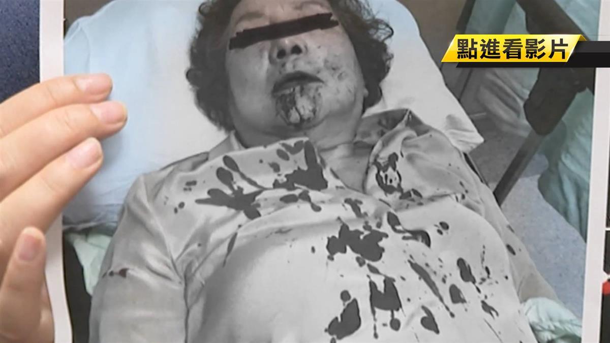阮綜合醫院改選董事 副院長妻遭毆…躺擔架出席